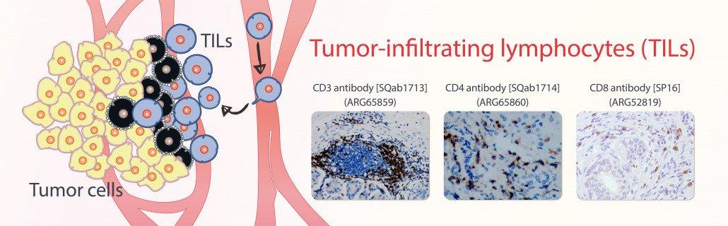 Tumor-infiltrating lymphocytes (TILs)